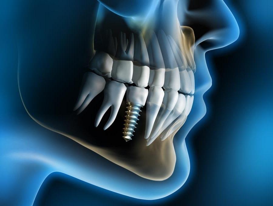 Desestiman la mala praxis tras el fracaso de varios implantes dentales