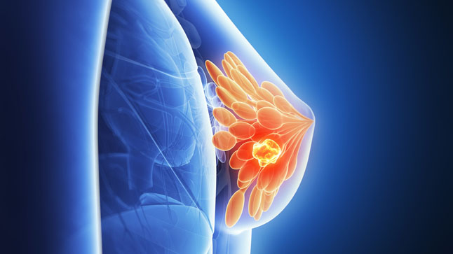 La omisión de los radiólogos supone la muerte de una paciente con cáncer de mama